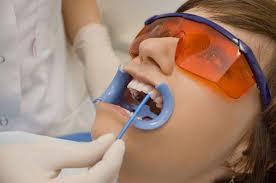 Отбеливание зубов: что советуют эксперты