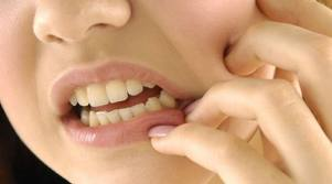 Зубной флюс или периостит челюсти