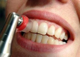 Зубные отложения (гигиена зубов)