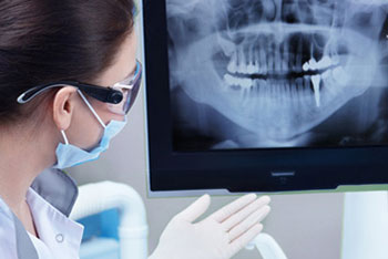 Пульпит зуба (пломбировка каналов)