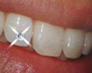 Названа специя, которая спасет от зубной боли