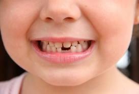 От чего выпадают зубы?