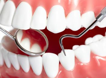 Лечение клиновидного дефекта зуба у стоматологов