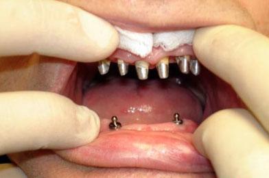 О мягких зубных протезах