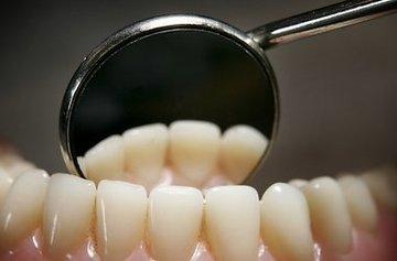 Эстетика в стоматологии
