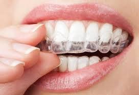 Микроабразия эмали зубов – прогрессивное отбеливание