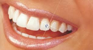Украшение зубов