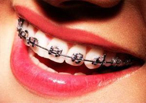 Как чистить зубы: ученые спорят