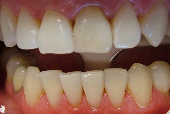 Семь способов отбеливания зубов