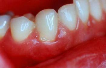 Заболевания пародонта, связанные с налетом