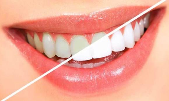 Изменение цвета зубов расскажет о здоровье