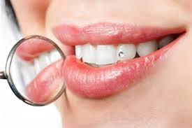 Пять продуктов, которые сохранят ваши зубы здоровыми