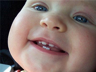 Появление первых зубов у ребенка