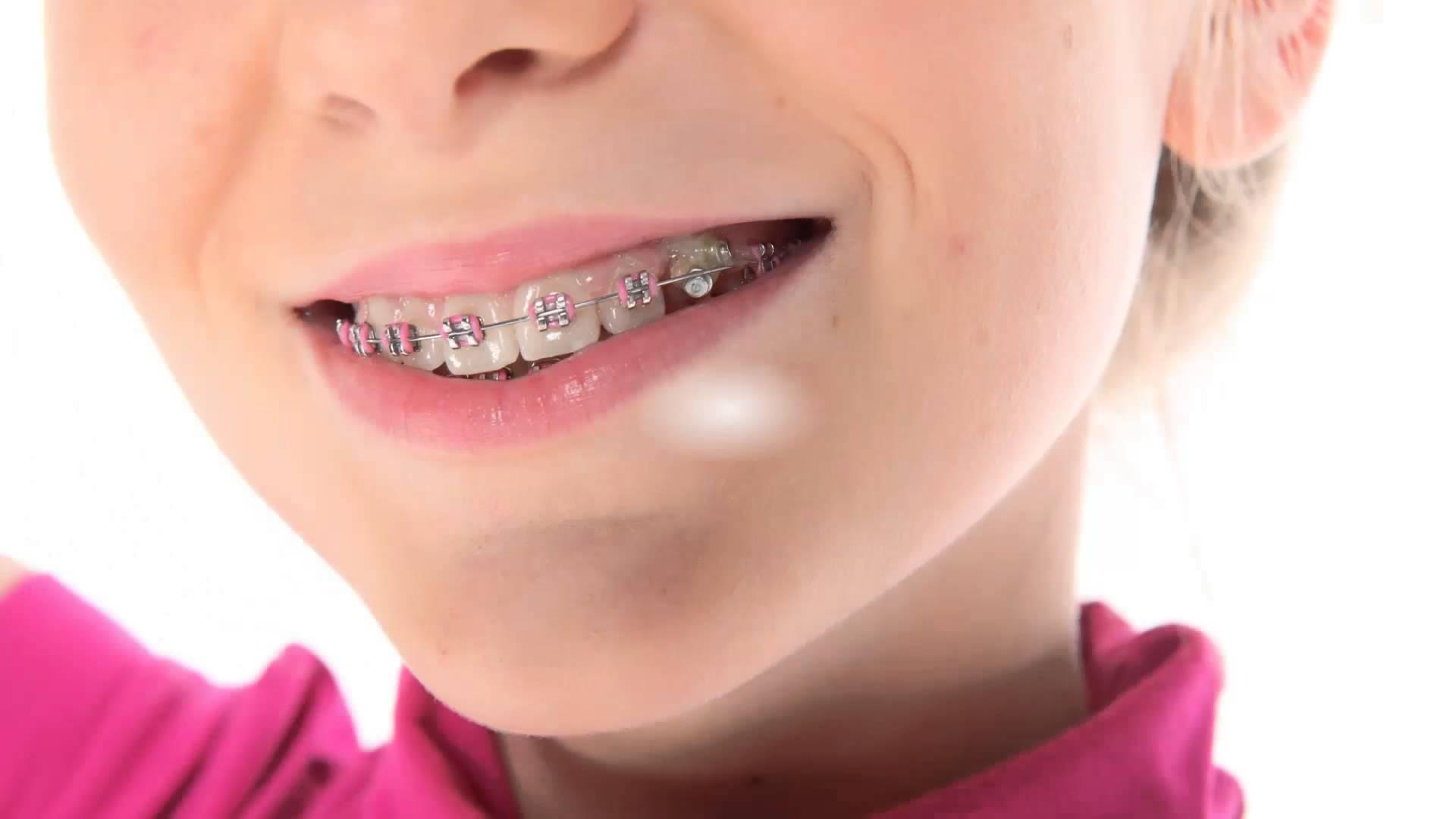 Брекеты в стоматологии: какие бывают, кому нужны