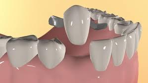 Реплантация зубов