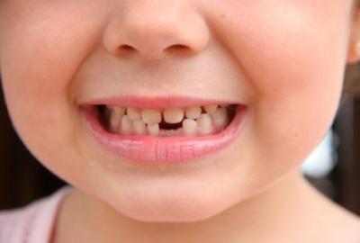 Что такое молочные зубы