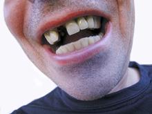 Наноалмазы спасут от выпадения зубов, показало исследование