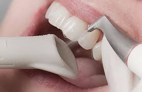 Лечение пульпита вместо удаления зуба