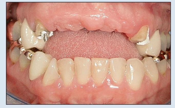 Механизм образования дефектов челюстей, атрофии альвеолярных дуг, челюстных сегментов