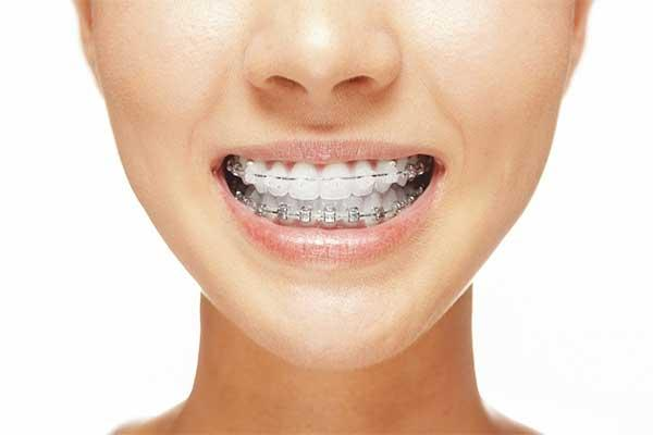 Уход за брекетами — советы как ухаживать за брекетами на зубах