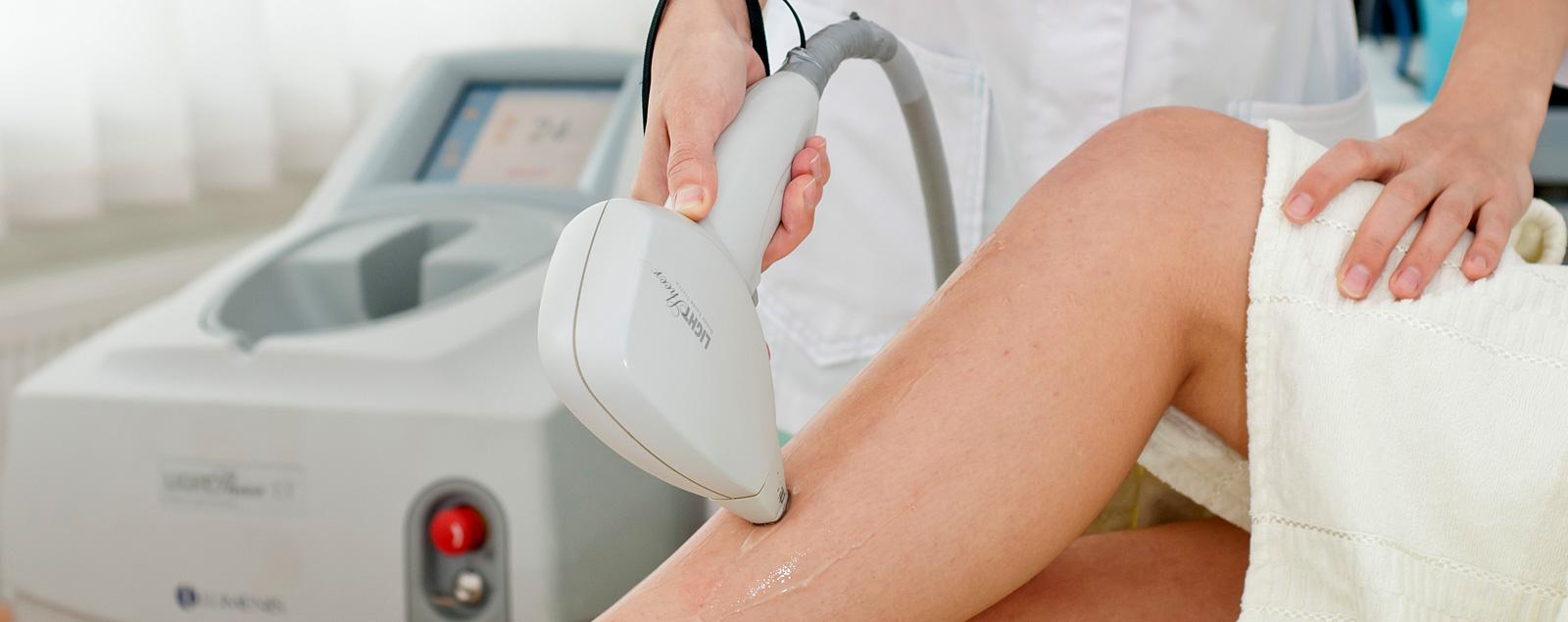 Лазерная эпиляция – процедура, облегчающая жизнь