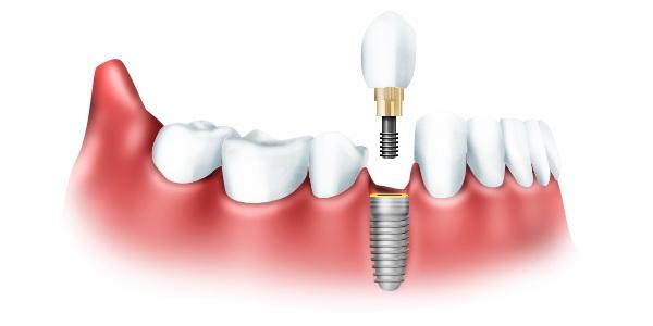 Имплантация зубов в Туле