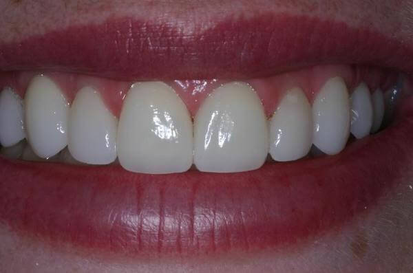 Виниры на зубы: секрет улыбки голливудских звезд