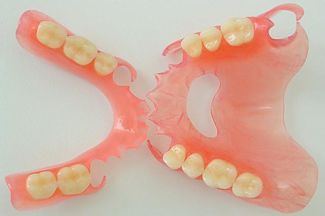 Что такое мягкие зубные протезы?