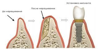 Регенерация кости и имплантация