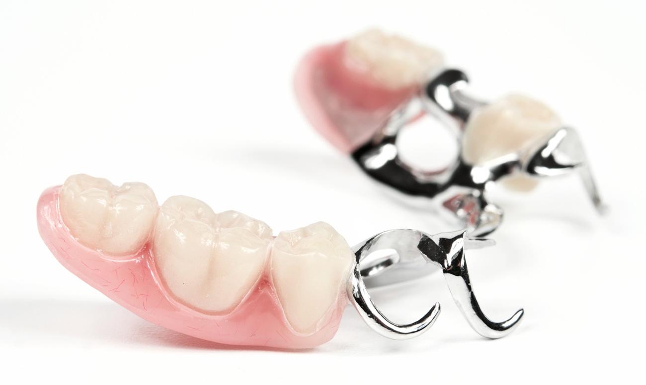 Протезирование зубов. От первых упоминания о протезирования зубов, до наших дней
