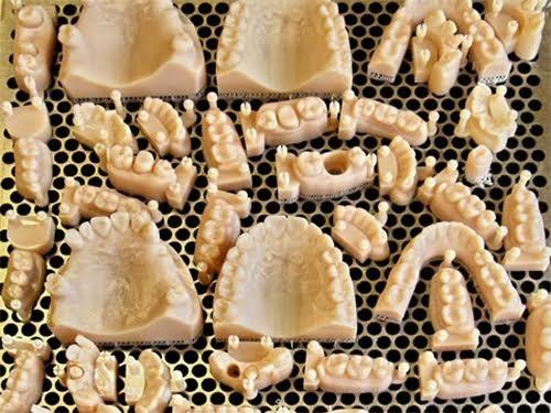Недостающие зубы напечатают на биопринтере