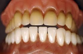Изменения эмали зубов