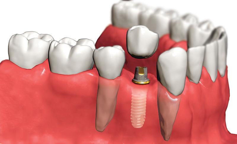Какая роль установки в стоматологической клиники