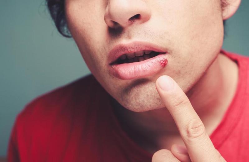 Причины появления герпеса на лице