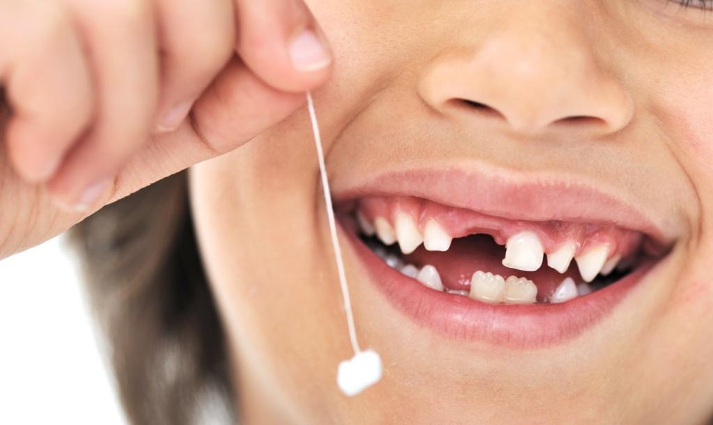 В каких случаях нельзя избежать удаления зуба?