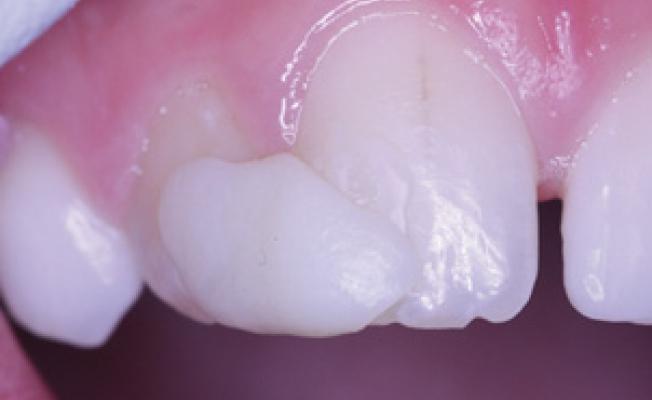 Какие бывают смещения зубов