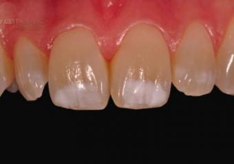 Белые пятна на зубах: причины