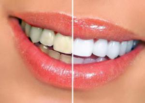 Почему зубные пасты не подходят для отбеливания зубов