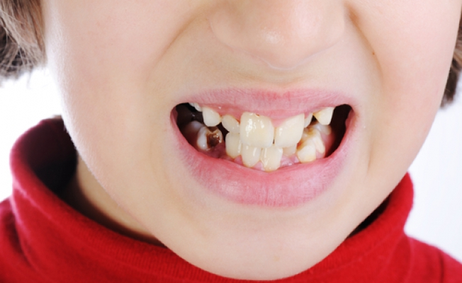 По каким причинам портятся зубы