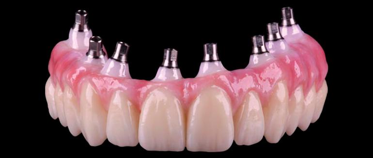 Оксид циркония в стоматологии