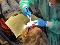 Пломбы, которые лечат зубы, изменят лицо современной стоматологии