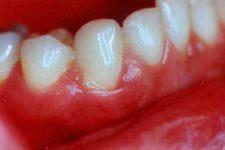 Заболевания десен: гингивит и пародонтоз