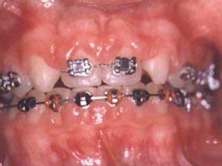 Гингивит после ортодонтического лечения