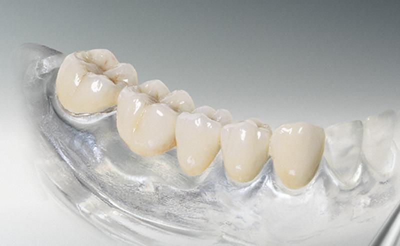 Предназначение зубных коронок и уход за ними