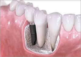 Какой срок службы зубных имплантов