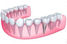 Алгоритм подготовки к имплантации зубов