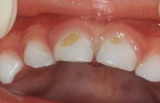 Пятна на зубах: причины и лечение