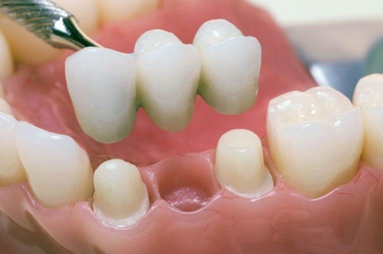 Протезирование зубов. Как продлить срок службы протезов из металлокерамики?