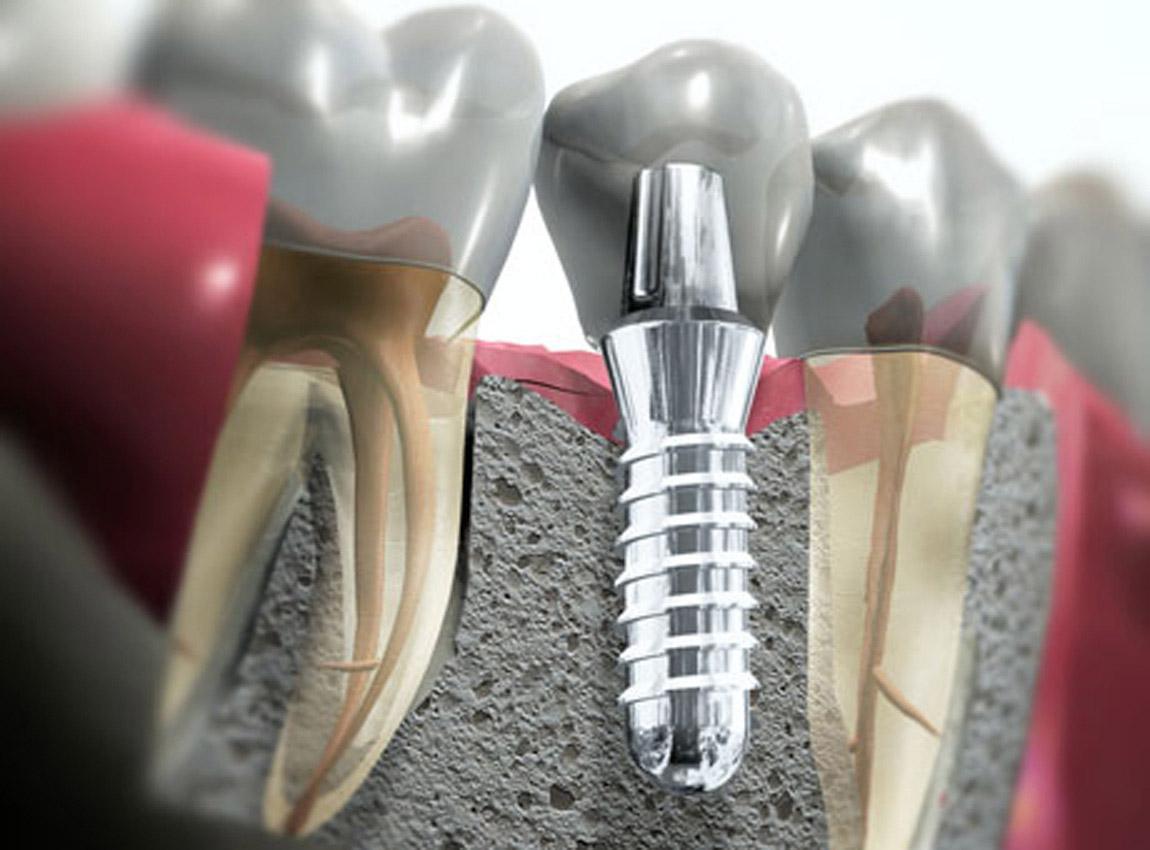 Обслуживание зубных имплантатов