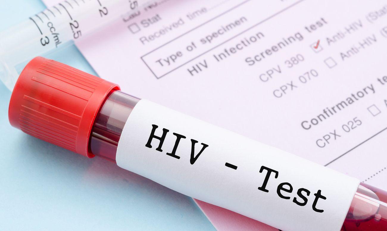 Профилактика ВИЧ в стоматологии